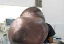 Beatrice Makokha; the woman who had a huge cyst on her forehead.